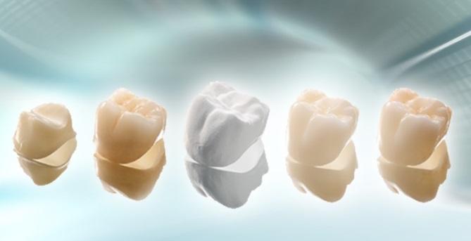 Bọc răng sứ có mấy loại PHỔ BIẾN nhất hiện nay?