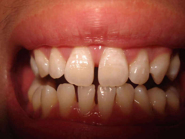 Bọc sứ 4 răng cửa có được không? [Chuyên gia tư vấn] 1