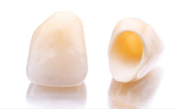 Bọc sứ 4 răng cửa có được không? [Chuyên gia tư vấn] 2