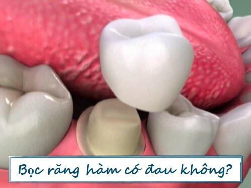TỔNG HỢP 5 câu hỏi thường gặp nhất về bọc răng hàm 3
