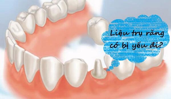 TỔNG HỢP 5 câu hỏi thường gặp nhất về bọc răng hàm 4