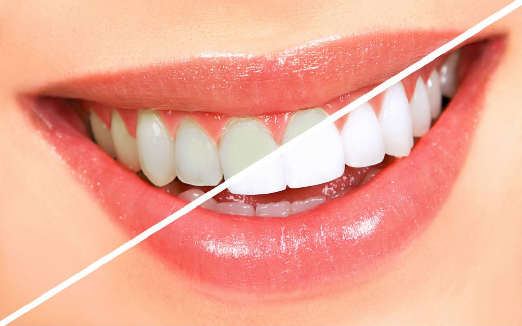 Cách làm trắng răng sứ Đơn Giản Hiệu Quả nhất cùng chuyên gia