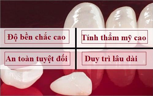 Bọc răng sứ cercon giá bao nhiêu tiền? So sánh với các dòng răng sứ khác 2