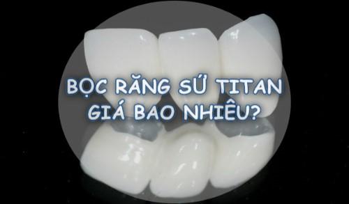 Bọc răng sứ Titan giá bao nhiêu tiền? Bảng giá Ưu Đãi 2018 có BH 1
