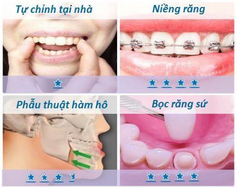 Răng hô và 4 phương pháp làm răng hết hô phổ biến nhất hiện nay 2