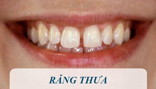 Cách chữa răng thưa hiệu quả nhất sau 3 ngày 100% thành công 1
