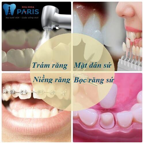 Cách chữa răng thưa hiệu quả nhất sau 3 ngày 100% thành công 2