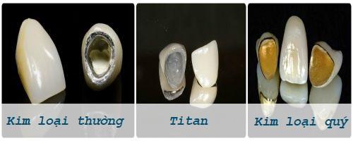 Tìm hiểu từ A đến Z ba loại răng sứ kim loại Phổ Biến nhất hiện nay 1
