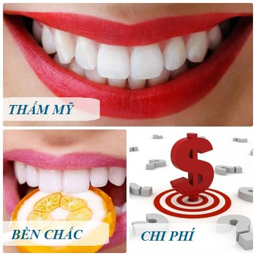 Răng sứ loại nào TỐT - Độ bền cao? Tư vấn răng sứ tốt nhất 2018 1