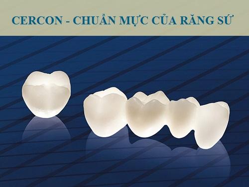 Răng sứ Cercon zirconia TỐT hay KHÔNG TỐT?