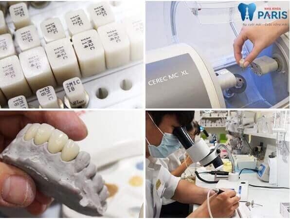 Bọc răng sứ Cercon - Đỉnh cao của công nghệ thẩm mỹ 2017 3