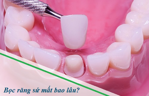 Thời gian bọc răng sứ mất bao lâu thì đảm bảo chất lượng tốt nhất? 1