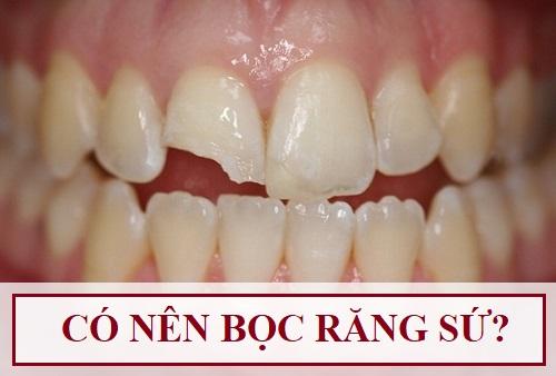 Có nên bọc răng sứ không cho hàm răng ĐẸP & THẨM MỸ không? 1