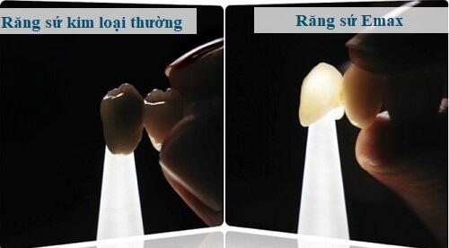 Răng sứ Emax - 5 Ưu điểm vượt trội mà không loại răng nào sánh kịp 3