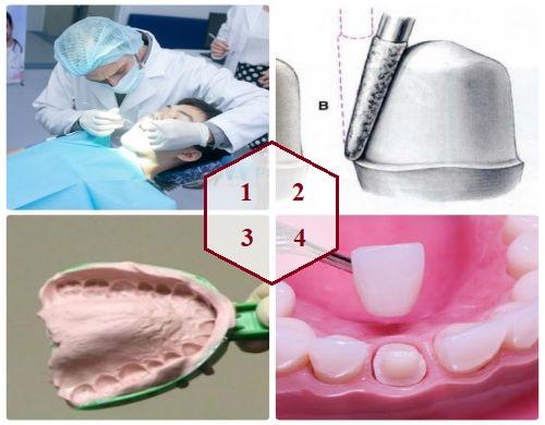 Bọc sứ răng thưa - Giải pháp làm răng đều & đẹp Tiết Kiệm chi phí 1