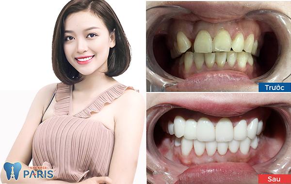 Bọc răng sứ giá bao nhiêu? Full Bảng giá và ưu đãi 2018 3