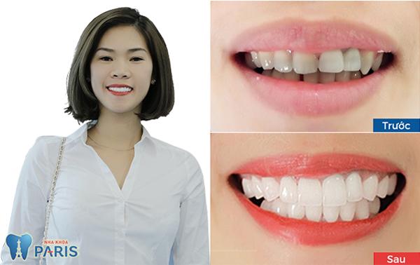 Bọc răng sứ giá bao nhiêu? Full Bảng giá và ưu đãi 2018 6