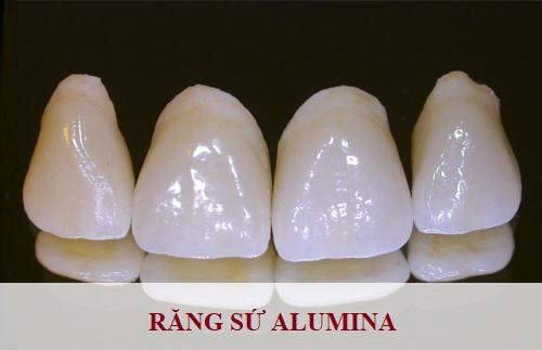 Có nên lựa chọn bọc răng sứ alumina? - Giải đáp từ chuyên gia 1