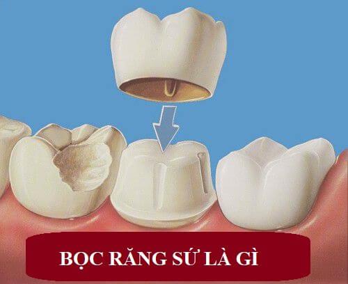 Bọc răng sứ là gì? Quy trình bọc răng sứ như thế nào là tốt nhất