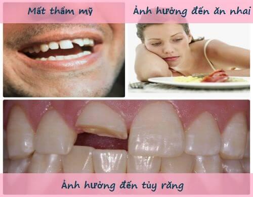 Giải đáp thắc mắc: Răng bị mẻ có sao không? 2