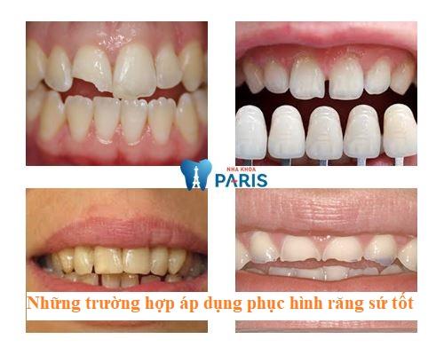 4 Lưu ý khi phục hình răng sứ mang lại hiệu quả và độ bền cao nhất 1
