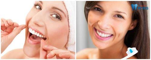 lưu ý khi phục hình răng sứ 121