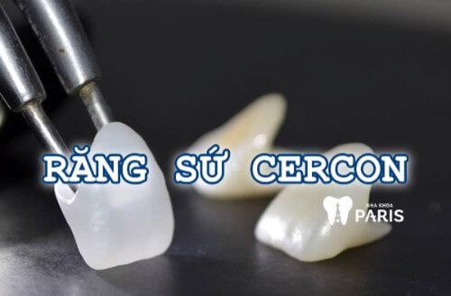 Bọc răng sứ Cercon - Đỉnh cao của công nghệ thẩm mỹ 2017 1
