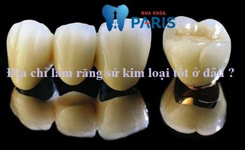 Địa chỉ làm răng sứ kim loại CHẤT LƯỢNG - UY TÍN - ĐẸP ở Hà Nội 1