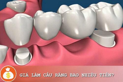 Làm cầu răng sứ giá bao nhiêu? Bảng giá làm cầu răng sứ Ưu đãi 1
