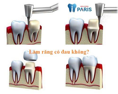 Làm răng có đau không? Phương pháp nào tốt nhất năm 2018? 1