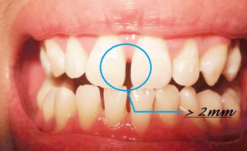 Làm mặt dán sứ Veneer cho răng hở kẽ có HIỆU QUẢ không 2