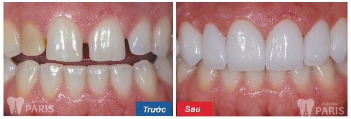 Làm mặt dán sứ Veneer cho răng thưa hay bọc răng sứ tốt hơn? 6