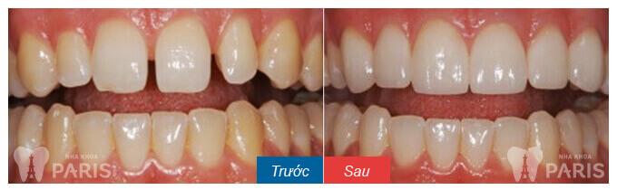 Làm mặt dán sứ Veneer cho răng thưa hay bọc răng sứ tốt hơn? 7