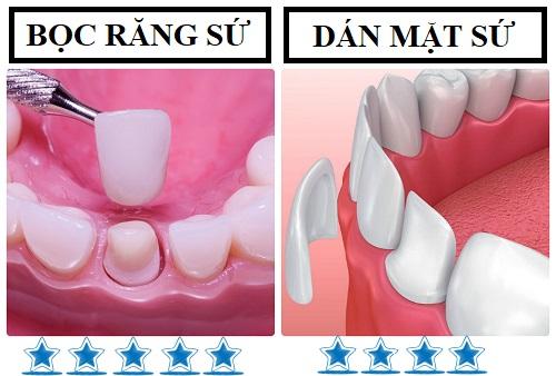 Làm mặt dán sứ Veneer cho răng thưa hay bọc răng sứ tốt hơn? 1
