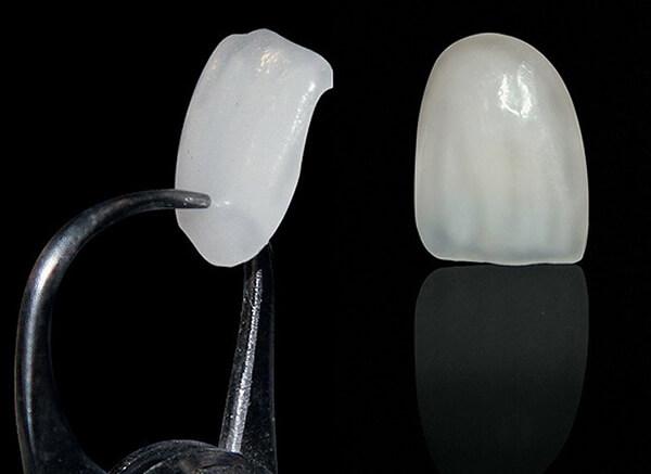 Làm răng veneer sứ nhanh với công nghệ hiện đại độ bền VĨNH VIỄN 3