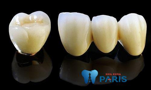 cách nhận biết răng sứ titan dựa vào đâu?2