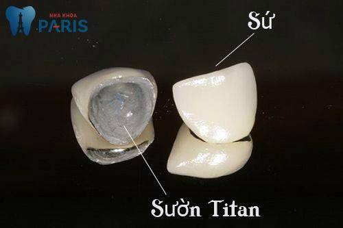 cách nhận biết răng sứ titan dựa vào đâu?