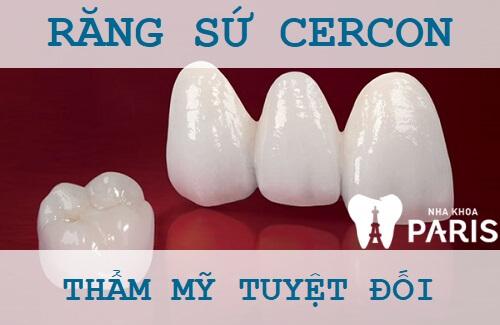 Bọc răng sứ Cercon có tốt không ? Ưu nhược điểm để biết có nên chọn 2