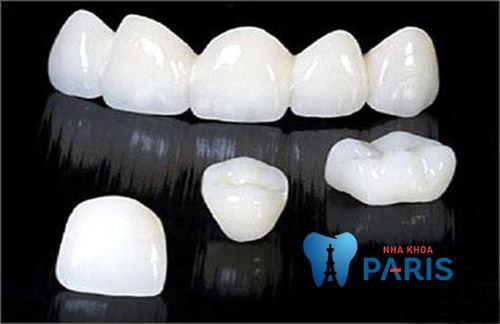 làm cầu răng sứ bằng công nghệ Nano Shining 5S