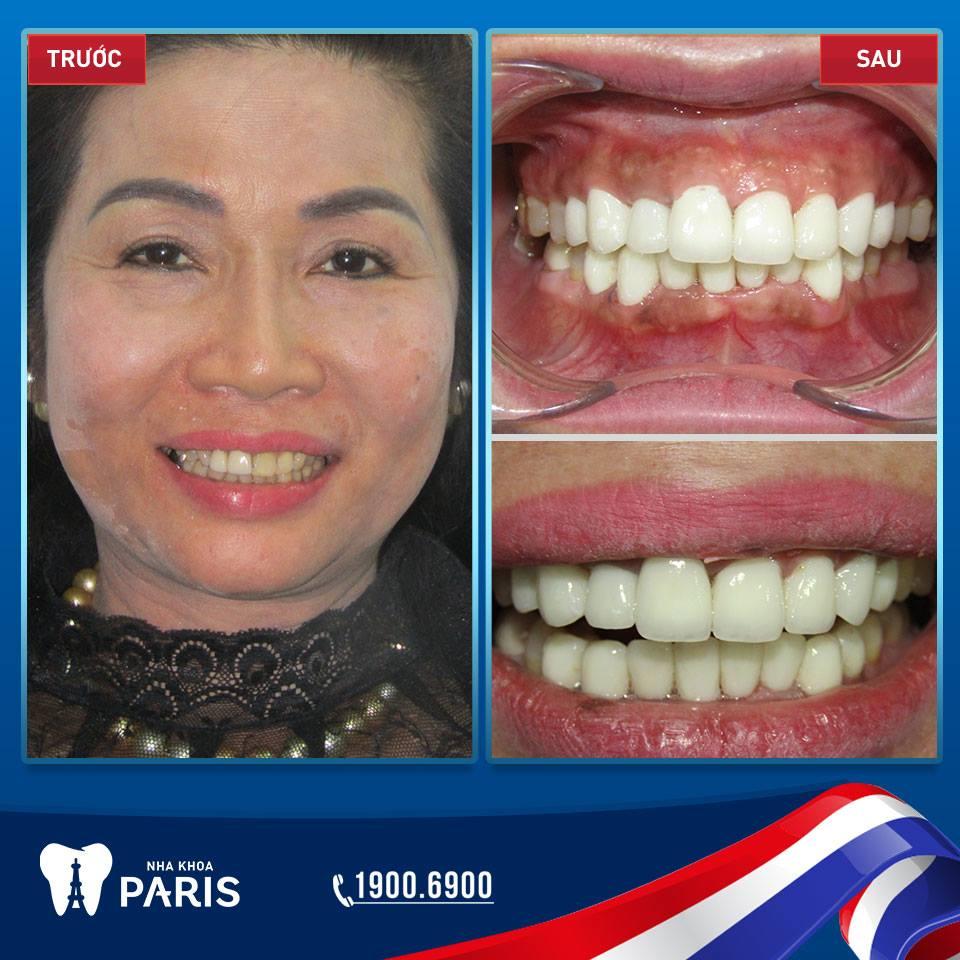 Khách hàng thay đổi ngoạn mục khi bọc răng toàn sứ Cercon