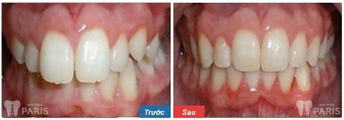Bọc răng sứ cho răng cửa vẩu - Thoát khỏi hàm răng hô nhanh nhất 3
