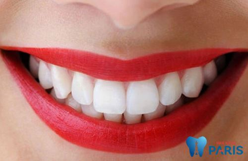 Bọc răng sứ cho răng cửa vẩu - Thoát khỏi hàm răng hô nhanh nhất 2