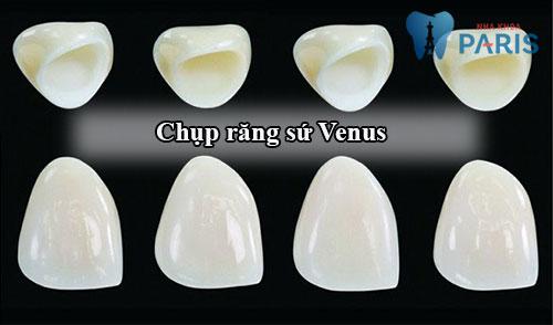Chụp răng sứ Venus – Bí mật giải mã cho hàm răng hoàn hảo 2