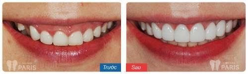 Chụp răng sứ Venus – Bí mật giải mã cho hàm răng hoàn hảo 6