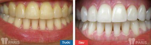 Chụp răng sứ Venus – Bí mật giải mã cho hàm răng hoàn hảo 7