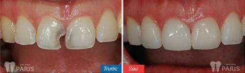 Chụp răng sứ Venus – Bí mật giải mã cho hàm răng hoàn hảo 8