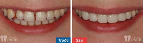 Chụp răng sứ Venus – Bí mật giải mã cho hàm răng hoàn hảo 9