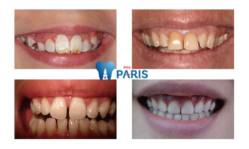 Chụp răng sứ Venus – Bí mật giải mã cho hàm răng hoàn hảo 1