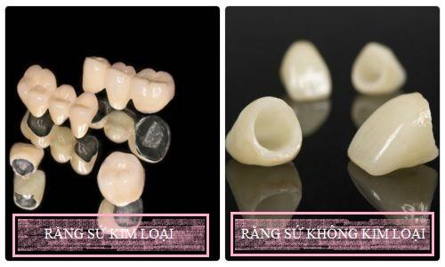Tìm hiểu về đặc trưng của các loại răng sứ hiện nay 1