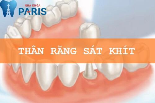 Giải đáp thắc mắc: Bọc răng sứ CÓ ĐAU KHÔNG? 3